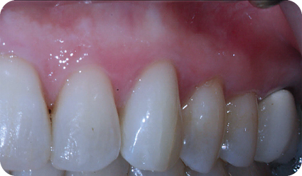 Photograph showing tooth #11 after internal bleaching.