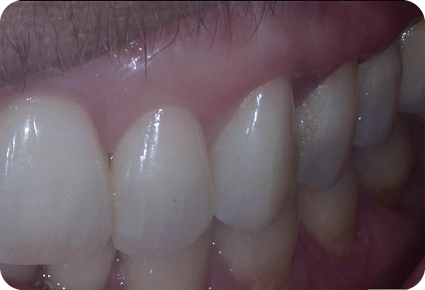 Photograph showing tooth #11.