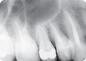 Photograph showing Tooth #5.