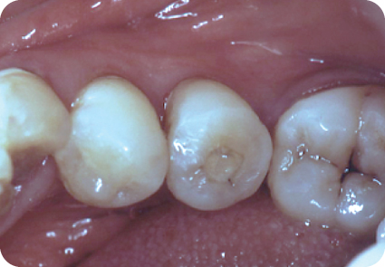 Photograph showing tooth #29.