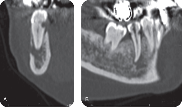 Illustration of Preoperative multi-slice CT images of tooth #29: Coronal view.; Illustration of Preoperative multi-slice CT images of tooth #29: sagittal view.