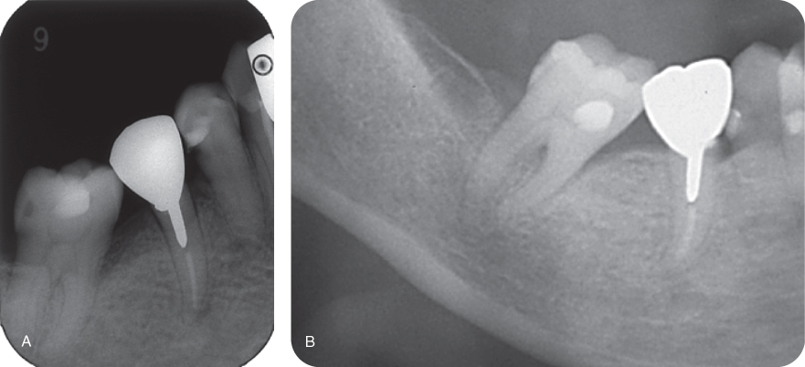 Illustration of periapical radiograph showing tooth #29.; Illustration of panoramic radiograph showing tooth #29.