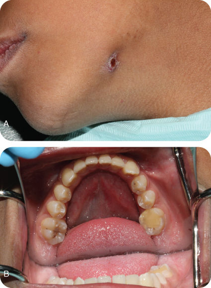 Illustration of Preoperative images showing a erythematous and crusted-surface nodule. ;Illustration of Preoperative images showing the offending tooth with no intraoral swelling.