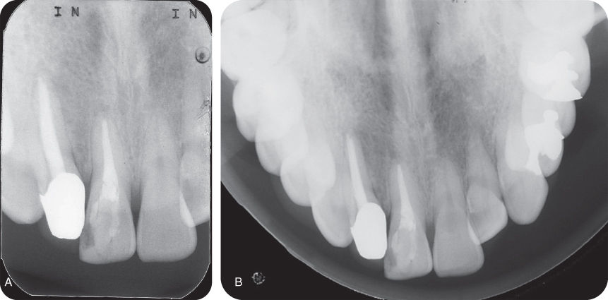 Illustration of Periapical radiograph.; Illustration of Axial occlusal radiograph.