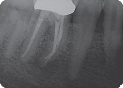 Image of follow-up radiograph of tooth #30.