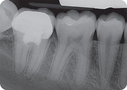 Illustration of Postoperative radiograph Follow-up 3 years 7 months.