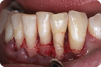 Photo of cervical resorptive defect restored with composite resin.