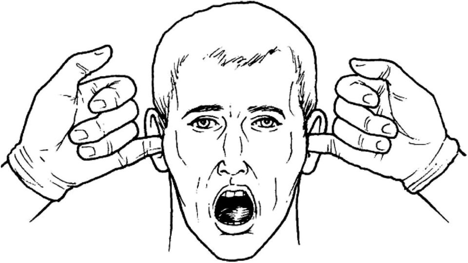 Line drawing of a face with the mouth wide open, with the pinky fingers inserted to both ears.