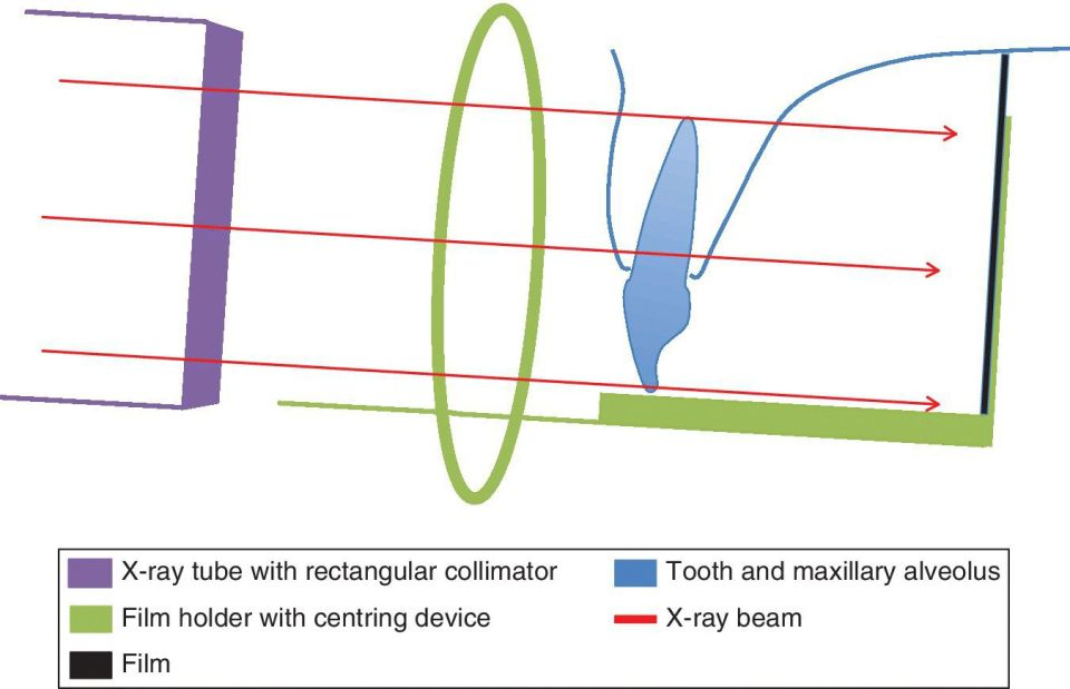 Schematic of the paralleling technique periapical radiography illustrating x-ray tube with rectangular collimator, film holder with centering device, film, tooth and maxillary alveolus, and x-ray beam.
