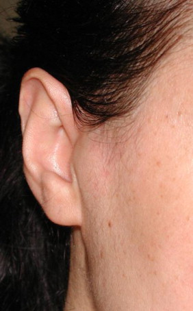 Synovial Cyst Of The Temporomandibular Joint A Case Report And