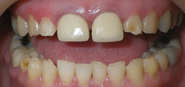 Photograph shows patient's teeth which has poor margins and inflamed gums, where some teeth are overhang and with open margins.