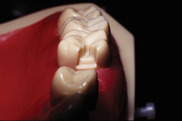 Photograph shows traditional gingival clearance technique, which looks like lower jaw structure and which is used as source of subgingival margin placement.