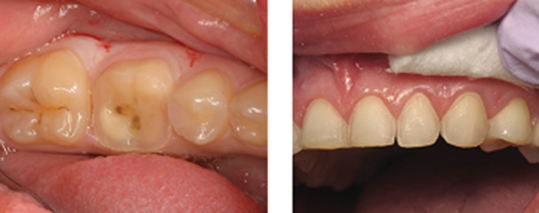 Photograph shows patient's upper jaw with supragingival margin which makes impression and cementation easier and more predictable.