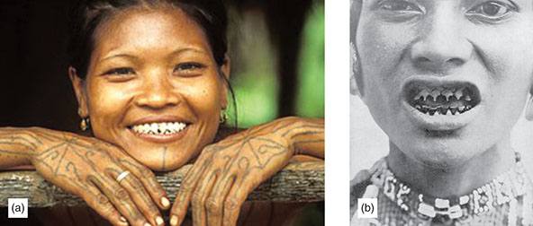 Photographs show lady showing her teeth which is indicated as unusual dental beauty, where dental parameters and healthy occlusion plays role in beauty.