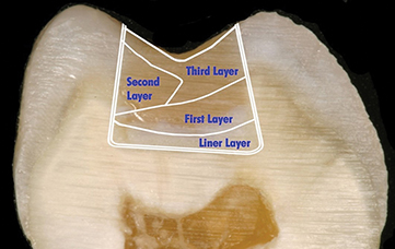 Photograph shows tooth with multiple increments, approach to manage polymerization shrinkage and stress, having second layer, third layer, first layer and liner layer.