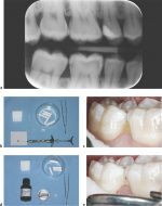 Noninvasive Therapy: 12 Caries Management by Influencing Mineralization