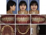 Nonsurgical treatment of an adult with a skeletal Class III malocclusion combined with a functional anterior shift, severely overclosed vertical dimension, and a reverse smile