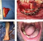 28 Reconstruction of Mandibular Defects