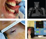 32 Neck Management for Oral Malignancies