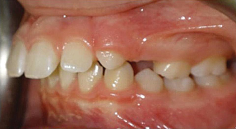 Photo displaying overjet malocclusion (left) of teeth.