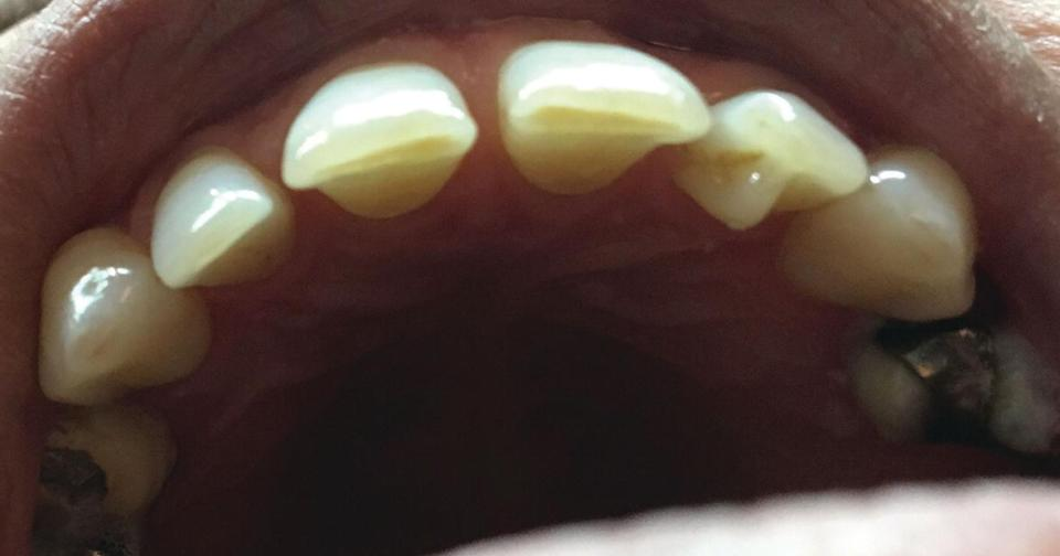 Occlusal view displaying the central with the right lateral incisors.