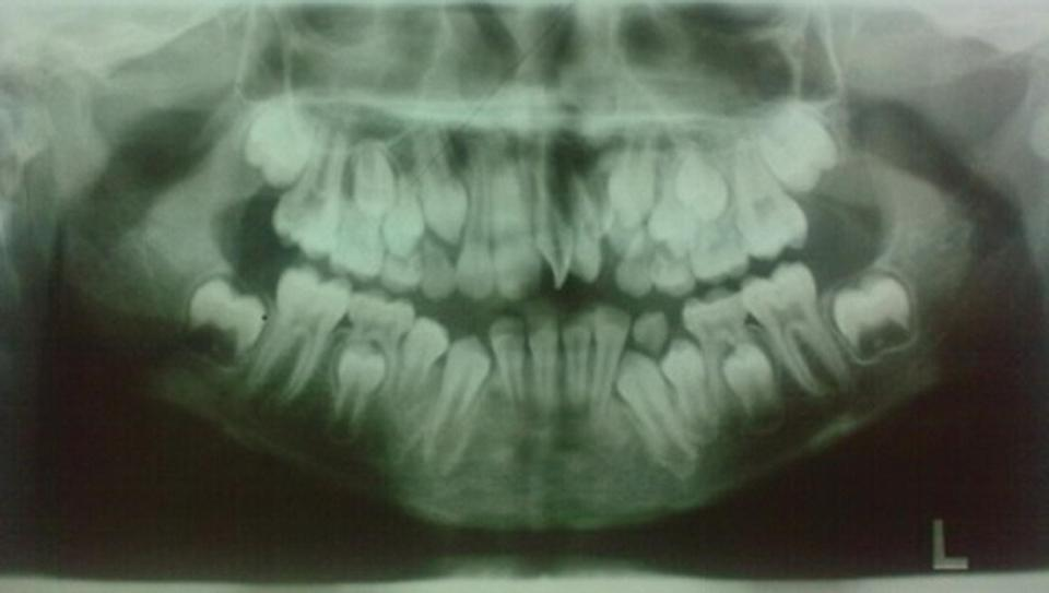 Panoramic radiograph of teeth exhibiting dentin dysplasia.