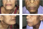Comparison of islanded facial artery myomucosal flap with fasciocutaneous free flaps in the reconstruction of lateral oral tongue defects