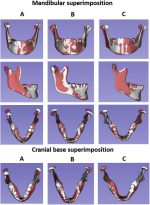 Three-dimensional assessment of mandibular asymmetry in skeletal Class I and unilateral crossbite malocclusion in3different age groups