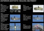 Implementing Digital Dentistry into Your Esthetic Dental Practice