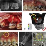 Overcoming compact bone resistance to tooth movement