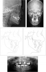 Interdisciplinary management of a patient with a bilateral cleft lip and palate and 12 congenitally missing teeth