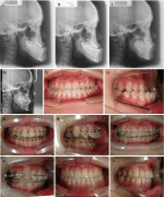 Application of Surgery-First Orthognathic Surgery in Patients with Class III Dentofacial Deformities