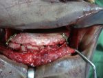Bone Grafting for Implant Surgery