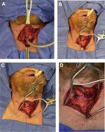 Management of Laryngeal Trauma