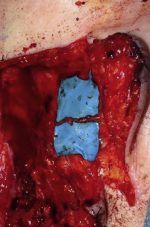 Management of Traumatic Trigeminal and Facial Nerve Injuries