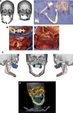 Updates in Management of Craniomaxillofacial Gunshot Wounds and Reconstruction of the Mandible