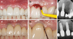 in Periodontal Surgery