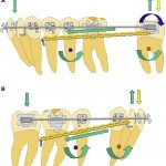 Treatment of facial asymmetry and severe midline deviation with orthodontic mini-implants