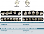 Arch traits that differentiate mandibular from maxillary incisors