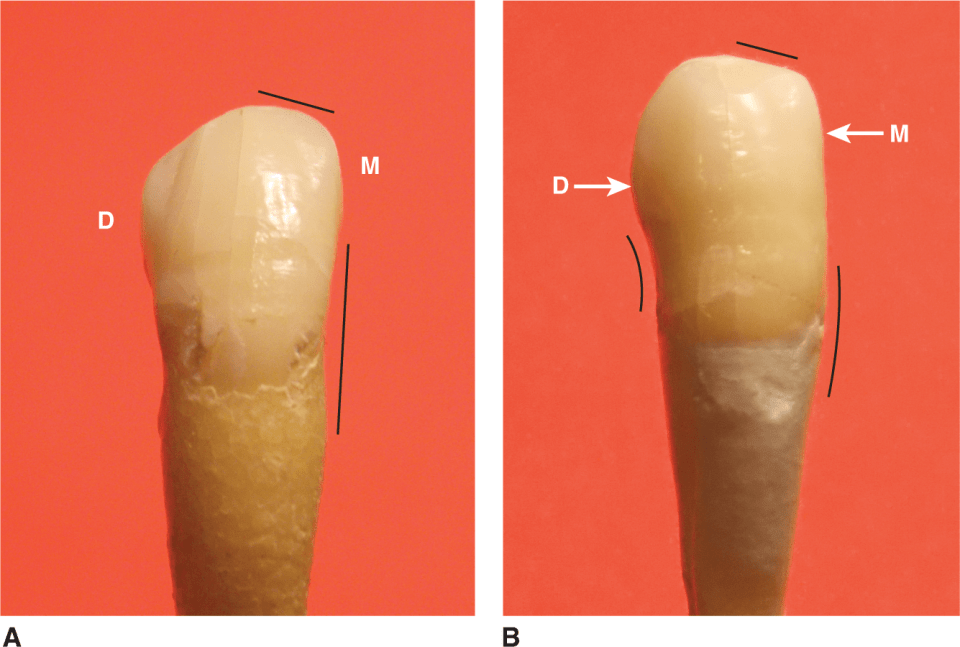 Photos A and B show the two different right mandibular canines.