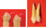 Class traits that apply to most premolars