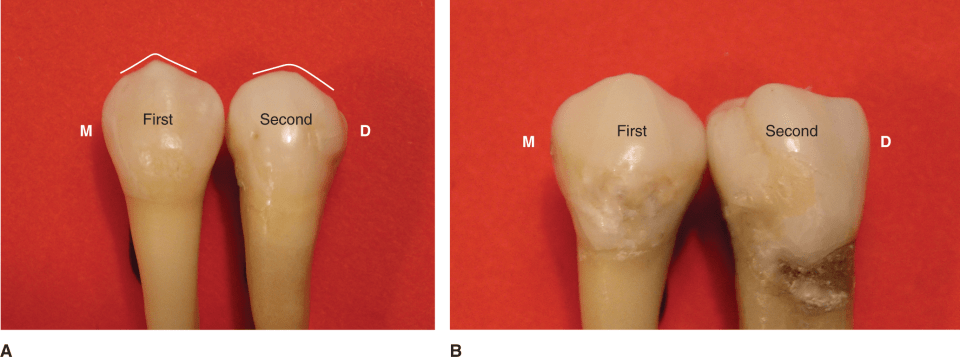 Photos A and B show the mandibular left first and second premolars.