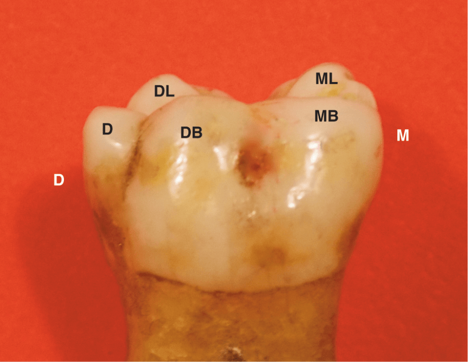 A photo shows the enamel extension downward into the buccal furcation of a mandibular right molar on a skull.