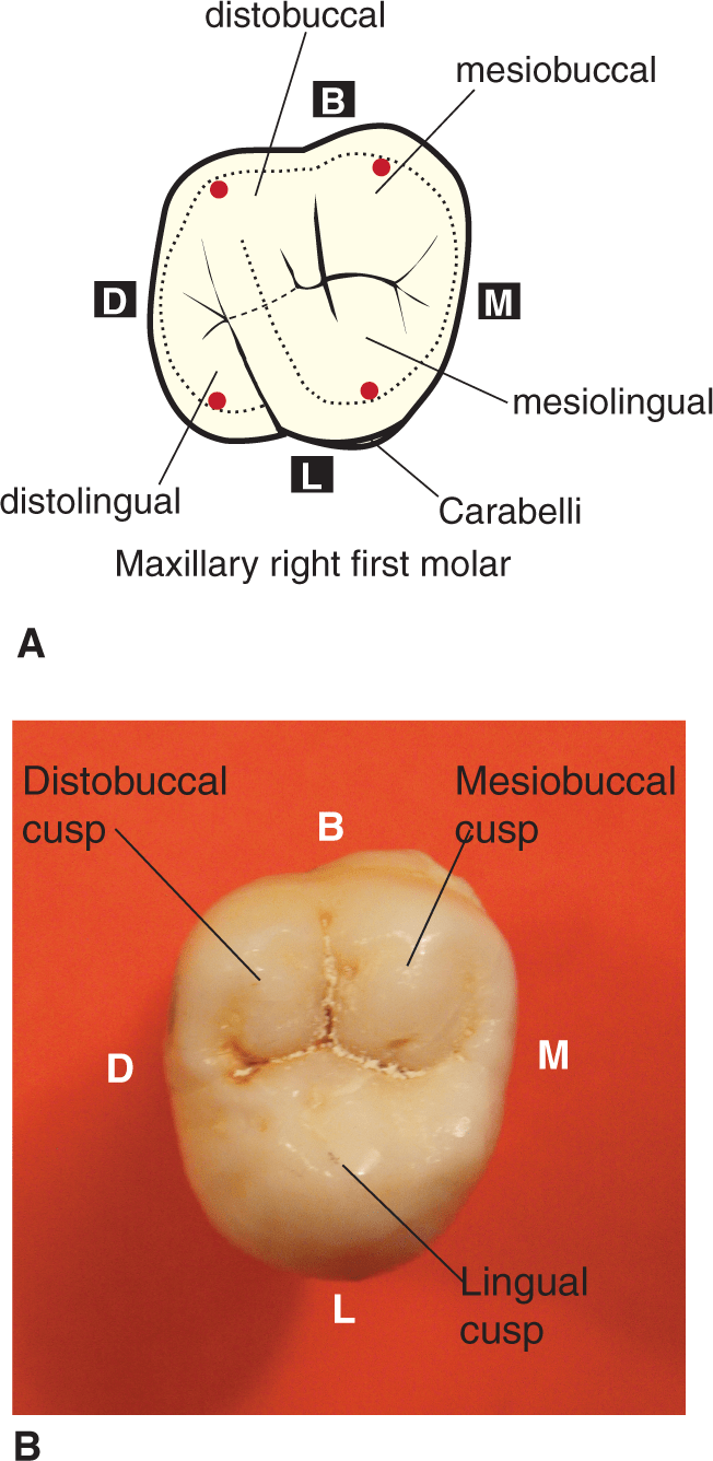 A photo shows the buccal view of maxillary first molar.