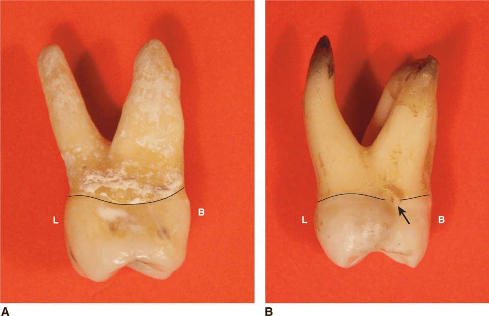 An illustration and photos show the occlusal views of maxillary molars.