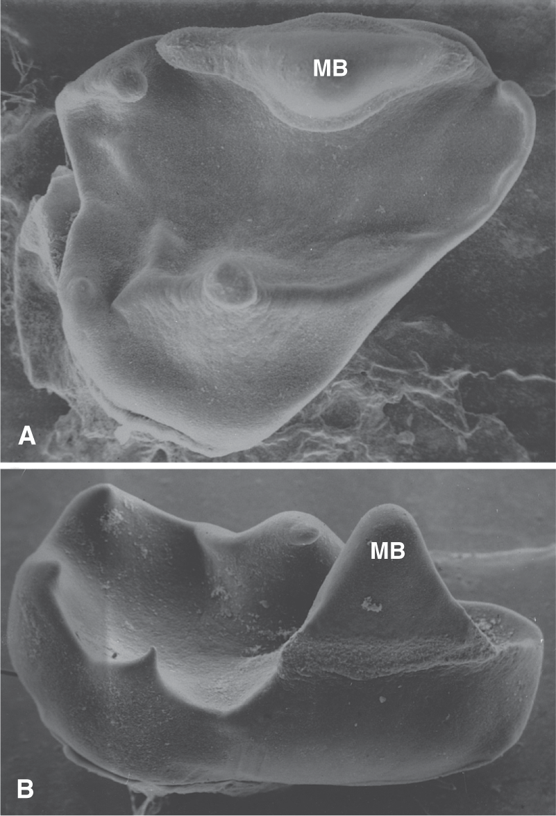Photo A and B show developing human primary molars.