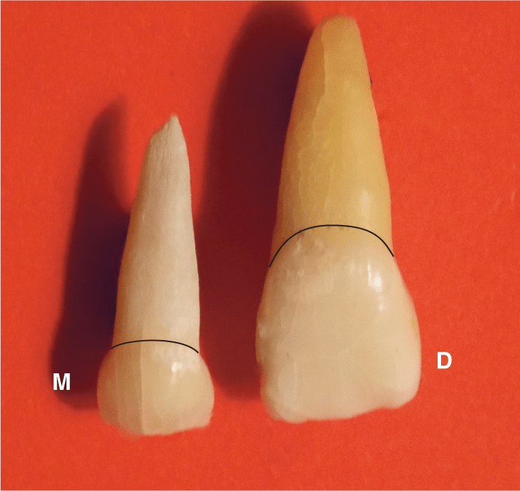 A photo shows a smaller and lighter colored maxillary incisor that has a long root and a small crown labeled as M next to a larger and darker colored maxillary incisor that has a long root and a large crown labeled as D.