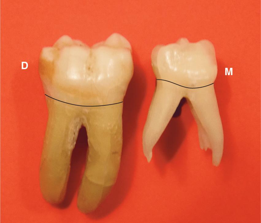 A photo of right permanent first mandibular molar and right primary second mandibular molar.