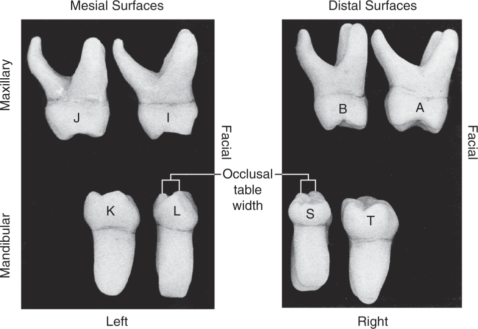 Two photos show the proximal view of all eight primary molars.