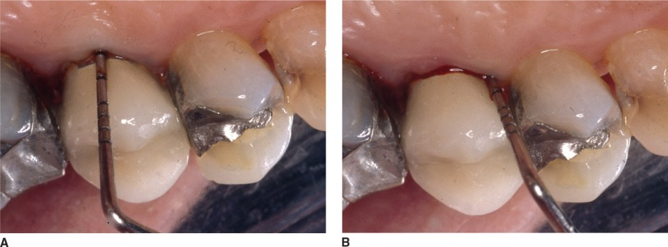Photos A and B show a clinical example of probe placement and bleeding on probing.